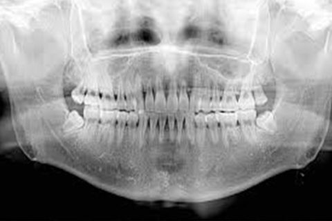 Ortopantomografia Radiografica Panoramica