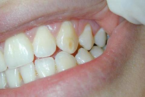 Trattamento delle macchie dei denti e delle piccole carie